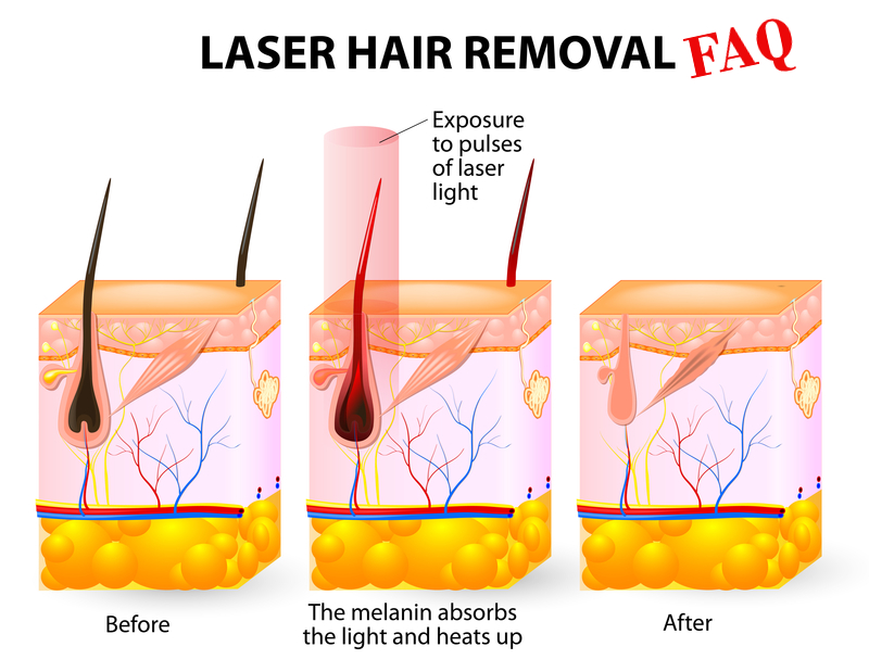 Laser Hair Removal Cost Comparison Vip Health And Laser Clinic
